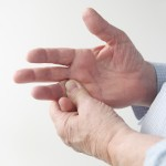 Botulinum toxin in scleroderma-associated Raynaud's